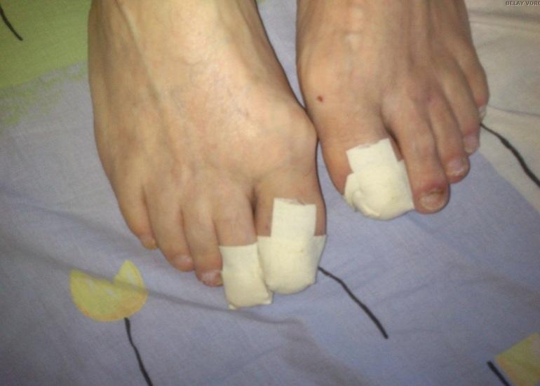 Кератолитический пластырь для ногтей