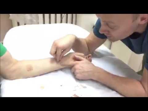 Кинезиотейпирование тазобедренного сустава при боли или артрозе (видео)